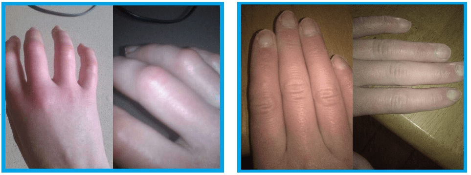 Before and After Photos of Joanne Sloughs hands Best Chilblains Treatment