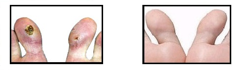 Before and After the Best Chilblains Treatment