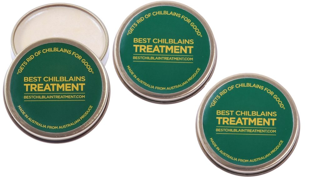 Chilblains Cure Ointment Best Chilblains Treatment three tin offer